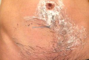 ギャランドゥ(腹毛)の除毛クリーム拭く